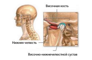 артроз височно нижнечелюстного сустава