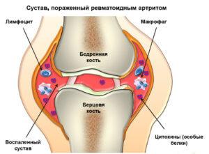 ревматоидный артрит лечение народными средствами
