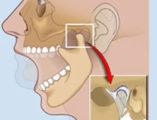 артрит височно нижнечелюстного сустава лечение