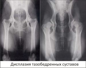 Изображение - Распорки при дисплазии тазобедренных суставов protezirovanie_plechevogo_sustava_otzyvy_6485_101-300x238