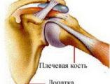 перелом плечевого сустава лечение