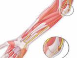 растяжение связок локтевого сустава