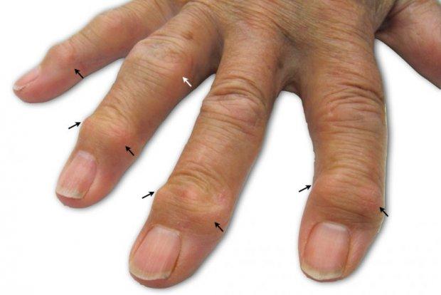 Мази при боли в голеностопном суставе