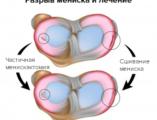 разрыв мениска операция